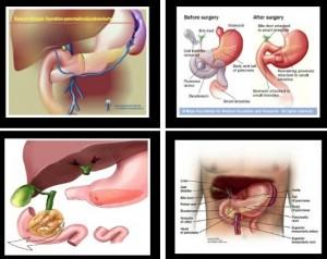 Whipple Procedure (pancreaticoduodenectomy) Pictures