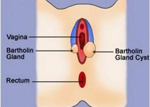 Bartholin gland cyst image