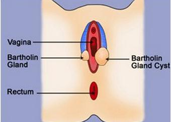 Bartholin gland cyst image Bartholin Gland Cyst   Pictures, Causes, Treatment