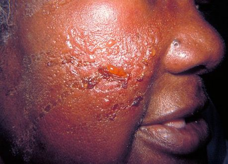 erysipelas - causes, pictures, treatment, infection, symptoms., Skeleton