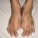 Fibrodysplasia Ossificans Progressiva - Pictures