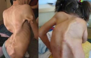Fibrodysplasia Ossificans Progressiva - Pictures2