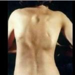 Fibrodysplasia Ossificans Progressiva images
