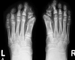 Fibrodysplasia Ossificans Progressiva pics