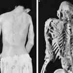 Fibrodysplasia Ossificans Progressiva pictures 150x150 Fibrodysplasia Ossificans Progressiva – Pictures, Symptoms, Treatment