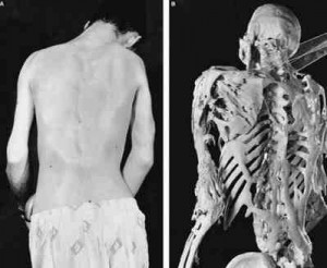 Fibrodysplasia Ossificans Progressiva pictures