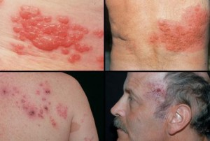Shingles Pictures slideshow