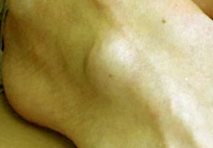 ganglion cyst at foot