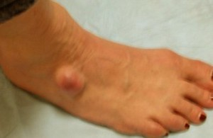 ganglion cyst at foot (ankle)