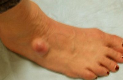 ganglion cyst at foot ankle Ganglion Cyst   Pictures, Wrist, Foot, Treatment, Surgery Removal