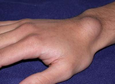ganglion cyst at wrist of upper arm