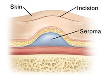 anatomy of seroma