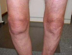Degenerative Joint Disease of knee