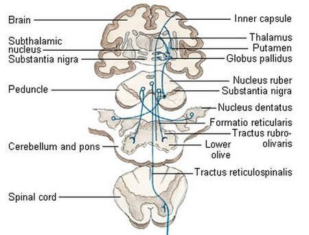 extrapyramidal disorder symptoms and signs