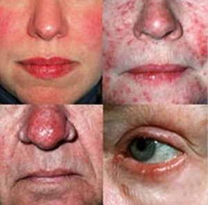 foru forms of rosacea