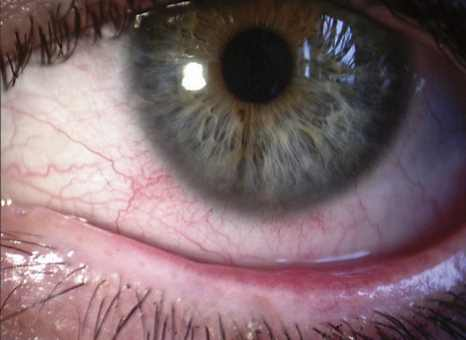 ocular, eyelid involvement in rosacea