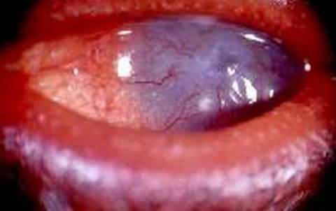 ocular pannus - exceesive pannus, corneal thinnning