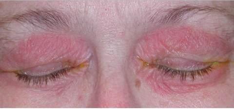 ocular rosacea pics