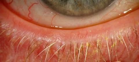 ocular rosacea pictures