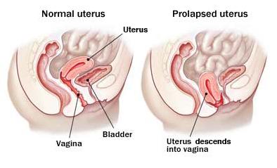 prolapsed uterus picture