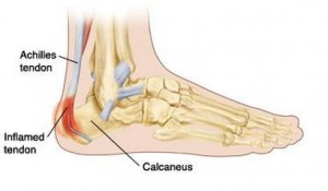 Calcaneal Apophysitis Image
