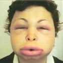 Angioedema picture
