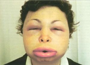 Hives Urticaria amp Angioedema  MedicineNet