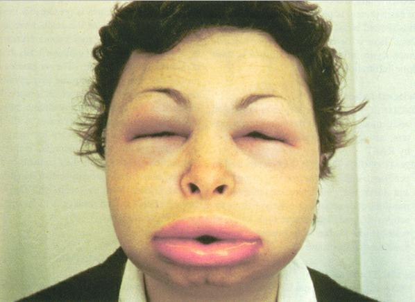 Angioedema picture