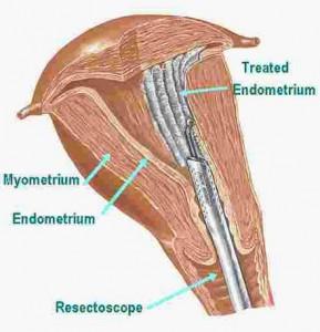 Endometrial Ablation procedure pics