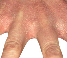 Allergic Contact Dermatitis on the hands pics