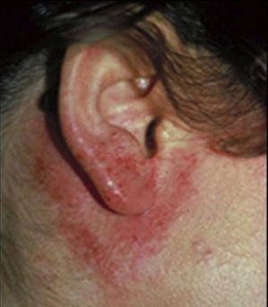 Pictures of Contact dermatitis on the ears