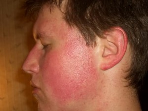 Image of Keratosis Pilaris on the face