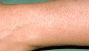 Keratosis Pilaris on the forearm image