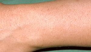 Keratosis Pilaris on the forearm image