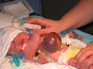 Omphalocele pictures