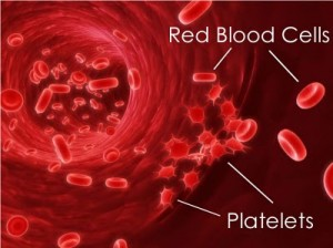 Low Platelet Count Pictures