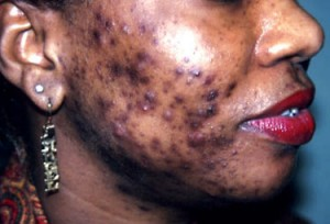 Post Inflammatory Hyperpigmentation picture