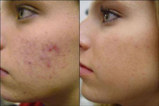 Post Inflammatory Hyperpigmentation After Laser treatment pics