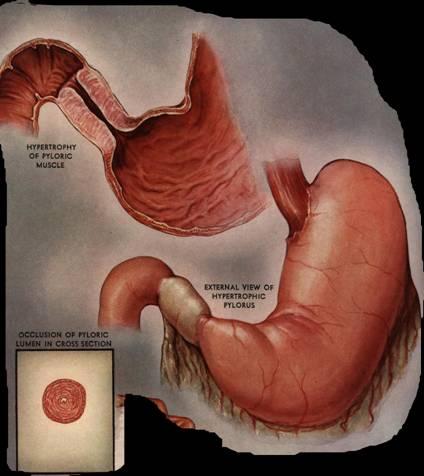 Pyloric stenosis pics