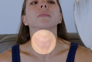 Swollen Thyroid Pictures