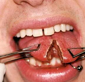 Tongue Piercing Side effects Tongue Piercing   Pictures, AfterCare, Risks, Price, Horizontal