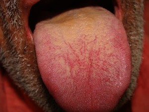 Coated Tongue pictures