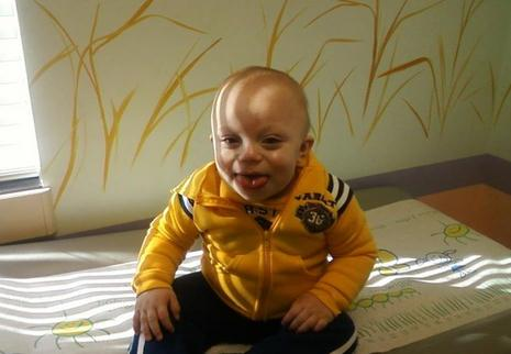 beckwith wiedemann syndrome photo