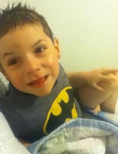 beckwith wiedemann syndrome picture