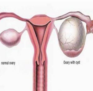 Adnexal Cyst pictures