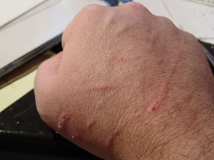 Cat Scratch Disease pics