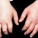 Minimal Change Disease edema picture