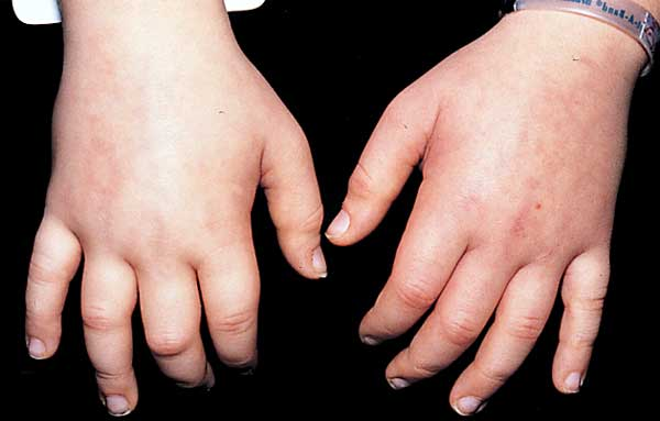 Minimal Change Disease  edema picture