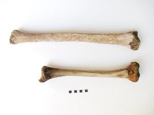 Images of Gigantism bones