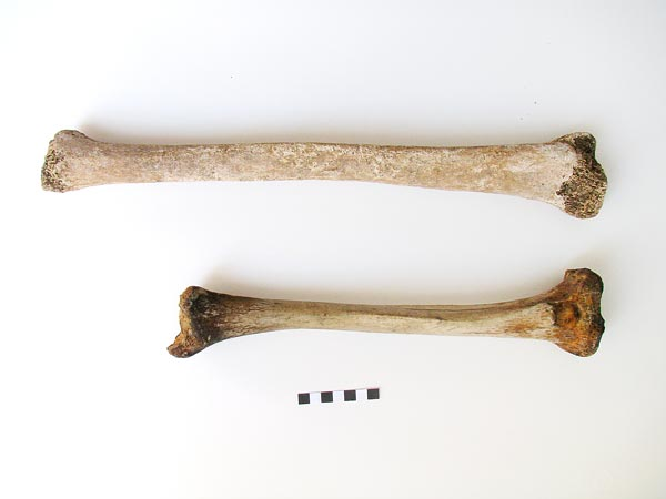 Images of Gigantism bones